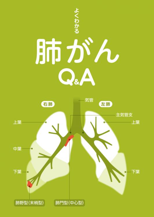 よくわかる肺がんQ&A